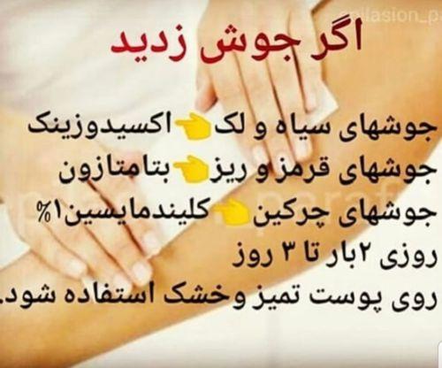 آموزش اپیلاسیون اصفهان